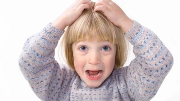 Alerta Piojos: truco sencillo para evitar contagiarse